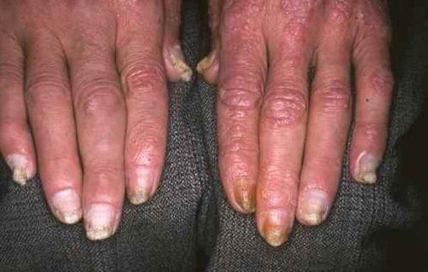 le psoriasis sur les mains et les ongles